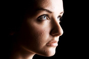 Leg Sores, Acne, etc.: Help the body repair itself