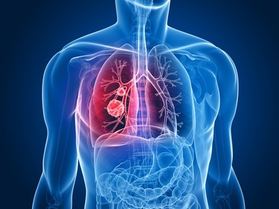 Lungs, anxiety and apathy in Traditional Chinese Medicine