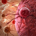 Melanoma (Skin Cancer): Causes and Natural Treatment